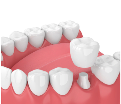 Image of dental crown in Chelsea MA